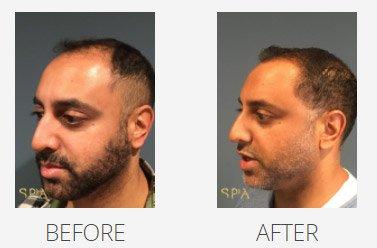 hair restoration gallery