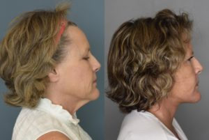 facelift results beverly hills