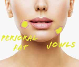perioral fat removal procedure