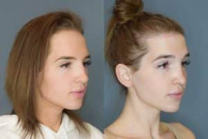 forehead reduction featured procedure