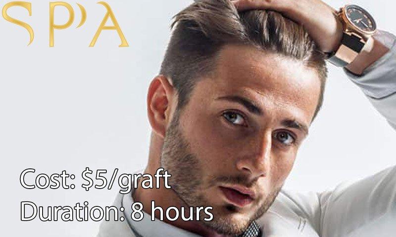 hair transplant surgery cost