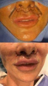 benefits of lip lift procedure