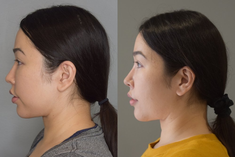 perioral lipo before and after