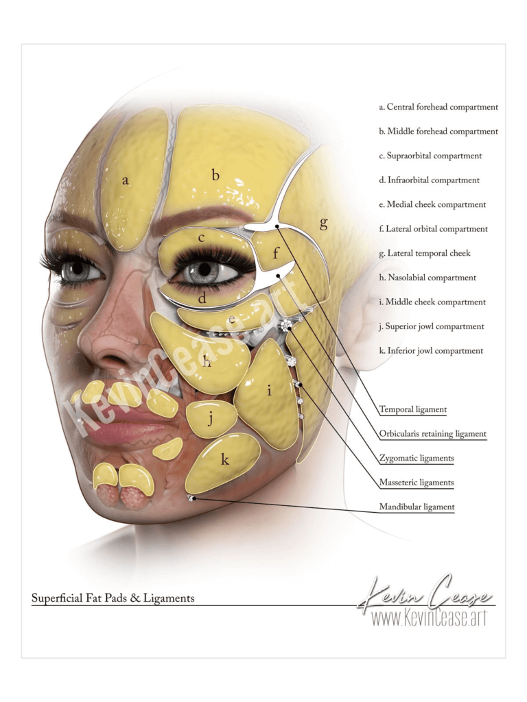 superficial fat pads perioral